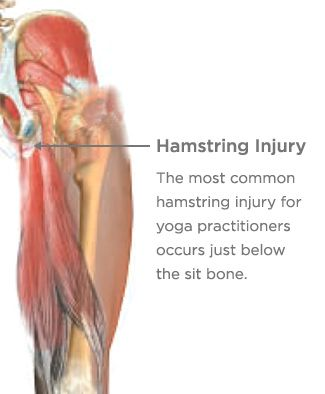 High Hamstring Tendonitis